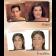 Coverderm Perfect Face Case Photos2