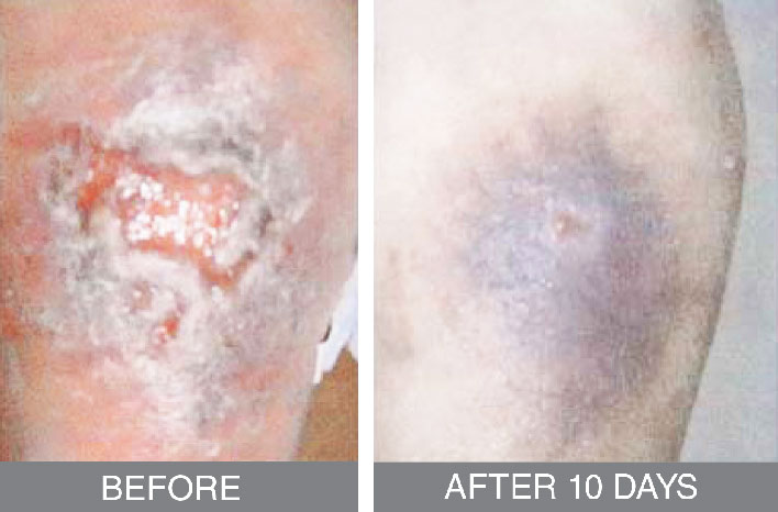 Recovery from skin ulcer