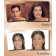 Coverderm Perfect Face Case Photos2
